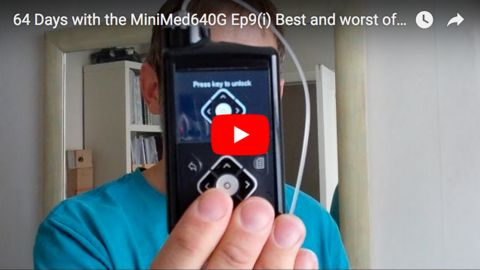 The best and the worst of 64 days with the Medtronic MiniMed 640G
